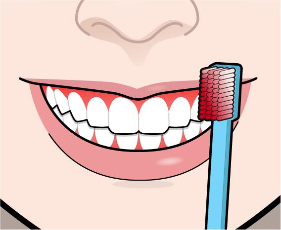 不健康な歯3