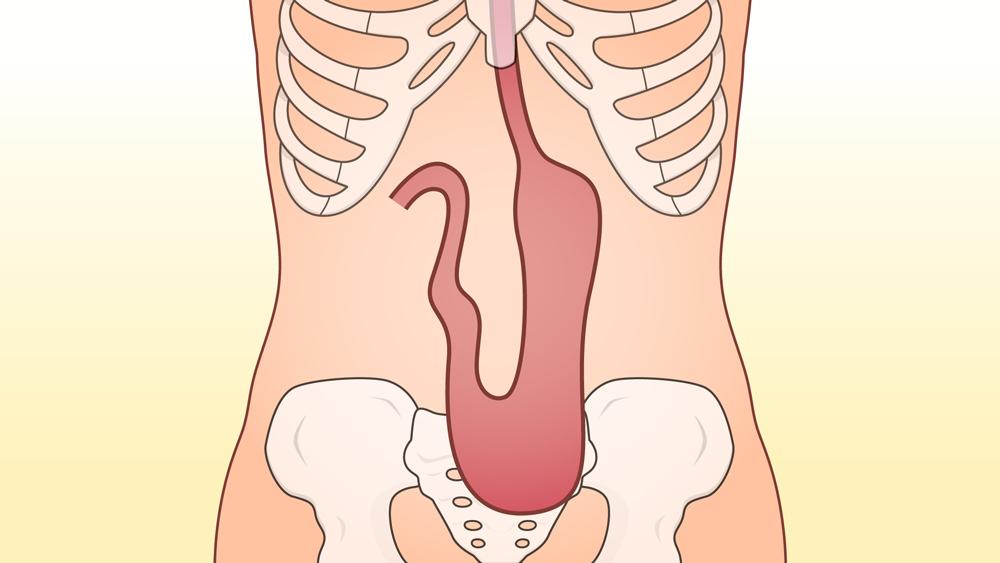 胃下垂の人の胃の位置